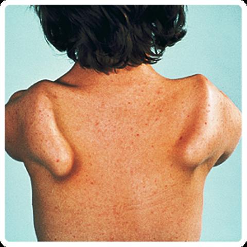 « Stress test » réussi pour le modèle montois expliquant la dystrophie musculaire FSHD